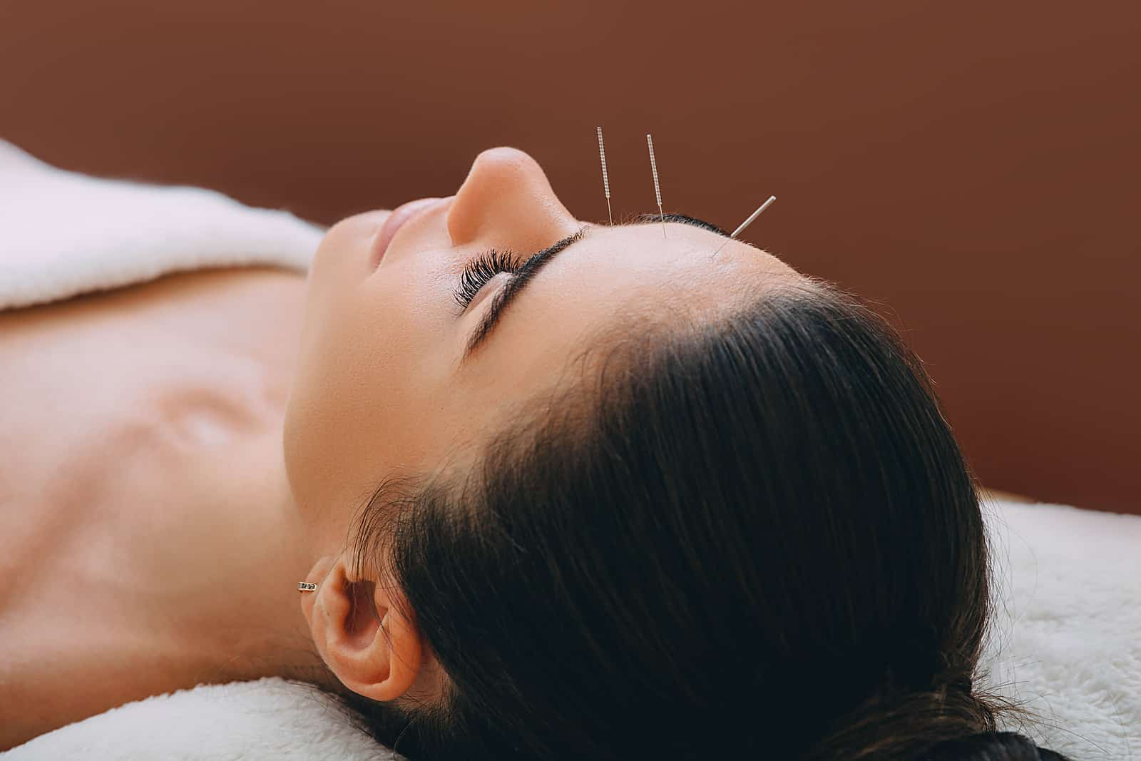 Beautiful woman received an acupuncture  - easy pain management tehniques
