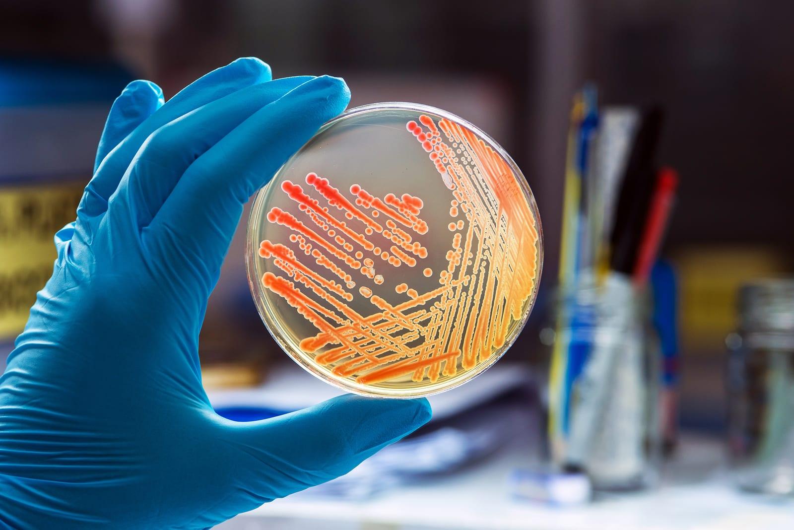 Gram negative cocco bacilli